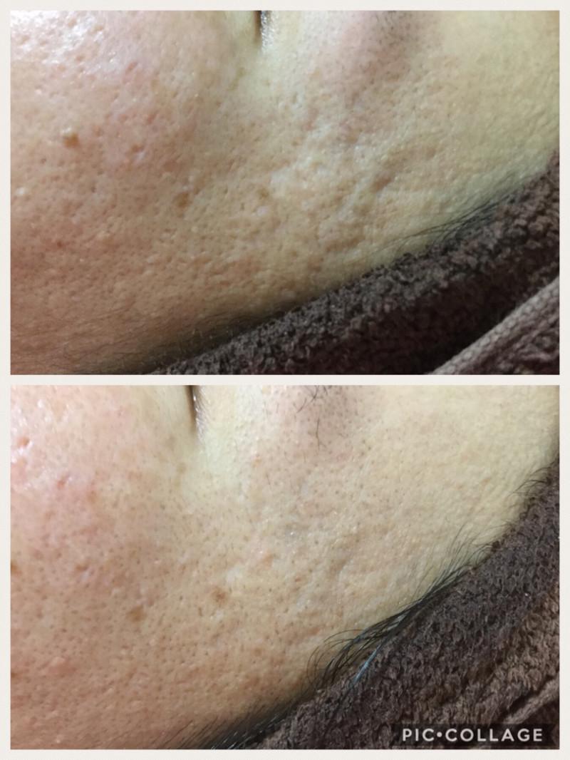 肌再生専門家(エステサロン ベル・エトワール)オーガニックプレミアム,クレーター肌