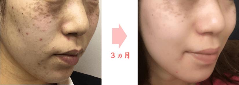 シャルムボー肌変化,症例,長岡のトラブル肌再生専門家,ベル・エトワール